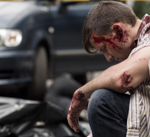Un joven se sienta ensangrentado frente a un automóvil después de un accidente automovilístico.